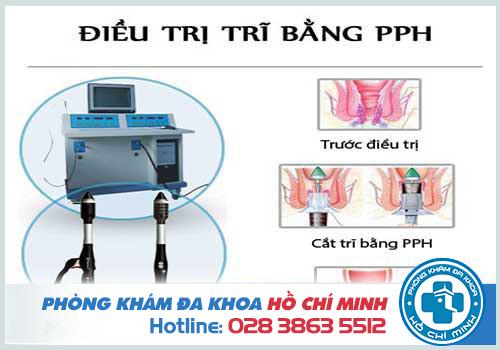 Phương pháp PPH điều trị bệnh trĩ