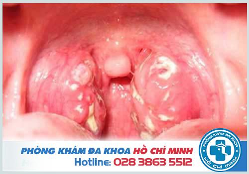 Bệnh lậu ở miệng có nguy hiểm không