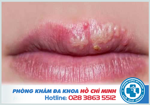 Đặc điểm vết bệnh Herpes ở môi