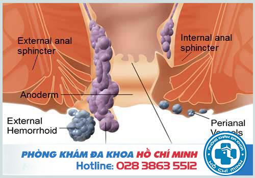 Bệnh trĩ là sự xuất hiện các đám rối tĩnh mạch vùng hậu môn