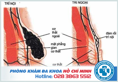 Bệnh trĩ lâu ngày sẽ gây nghẹt búi trĩ