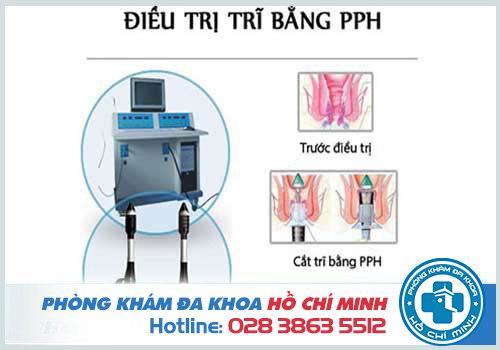 Điều trị dứt điểm bệnh trĩ bằng công nghệ PPH hiện đại