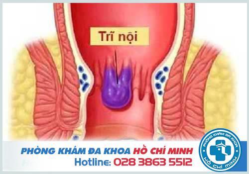 Bệnh trĩ nội độ 1 nếu không chữa trị kịp thời sẽ chuyển sang giai đoạn nặng