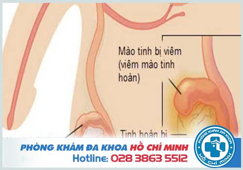 Bệnh viêm tinh hoàn thường gây đau đớn ở 1 hoặc 2 bên tinh hoàn