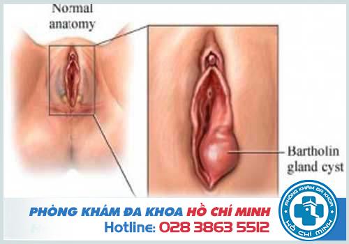 Nhận diện viêm tuyến Bartholin ở nữ