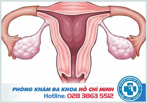 Bệnh viêm vùng chậu có thể dẫn tới áp xe buồng trứng, ống dẫn trứng