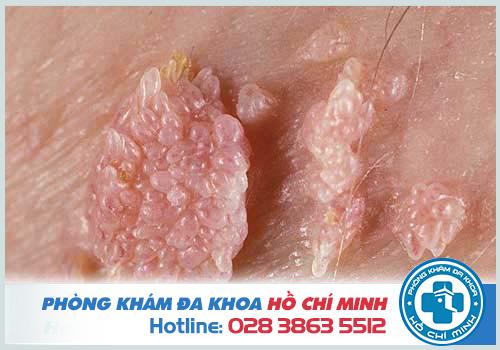 Bệnh viện xét nghiệm chữa trị sùi mào gà ở quận Bình Thạnh