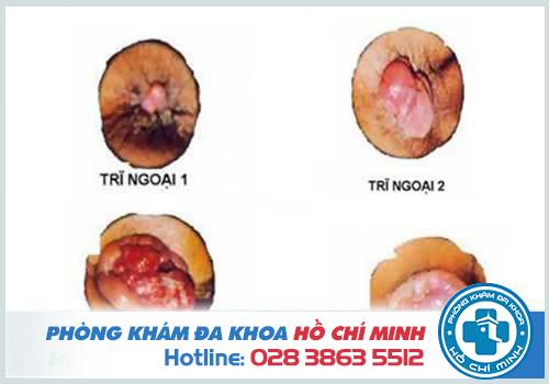 Hình ảnh các giai đoạn của bệnh trĩ ngoại