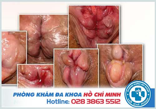 Triệu chứng phổ biến nhất của bệnh trĩ nội là chảy máu