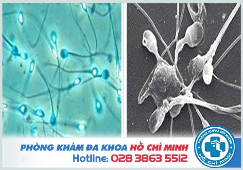Tinh trùng bị dị tật không thể đảm nhận chức năng sinh sản