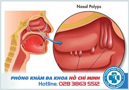 Cách làm teo polyp mũi đơn giản tại nhà hiệu quả