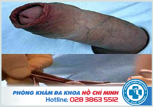Cắt bao quy đầu giúp ngăn ngừa viêm nhiễm