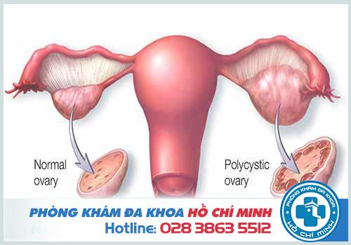 Buồng trứng đa nang là nguyên nhân phổ biến gây chậm kinh 18 ngày hoặc hơn