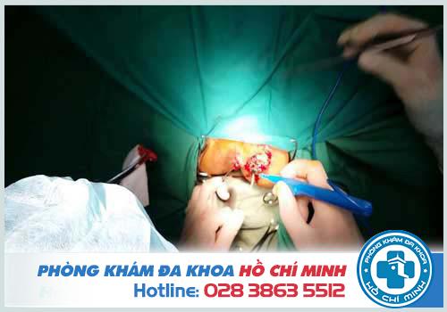 Phẫu thuật cắt mở đường rò hậu môn