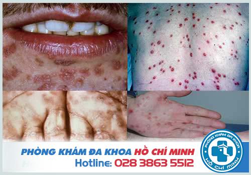 Chi phí xét nghiệm bệnh giang mai - Phòng khám đa khoa Đại Đông TPHCM