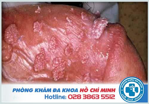 Sùi mào gà thường xuất hiện hình mào gà hoặc súp lơ ở bộ phận sinh dục