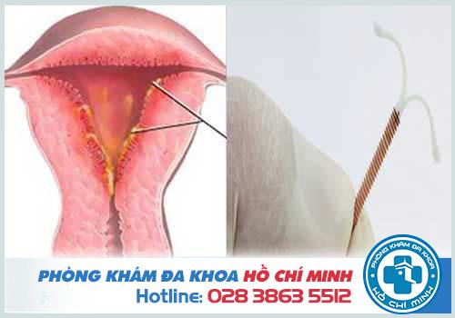 Đặt vòng tránh thai bị viêm nhiễm phải làm sao chữa trị