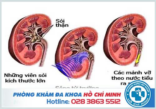 Bệnh sỏi thận gây đau bụng dưới âm ỉ kéo dài