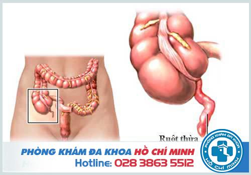 Đau bụng dưới bên phải gần háng là bị viêm ruột thừa