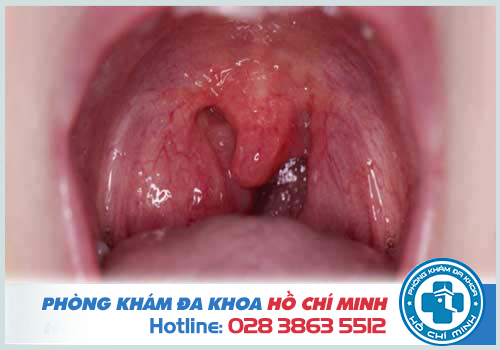 Đau họng khó thở do viêm amidan
