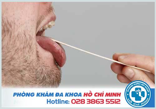 Đau rát lưỡi là bị gì? Cách chữa đau rát lưỡi hiệu quả nhất