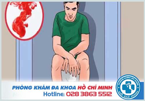 Đi cầu ra máu ở nam giới nguyên nhân và cách chữa trị