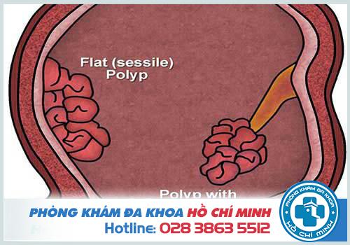 Đi đại tiện ra máu đông là do Polyp hậu môn