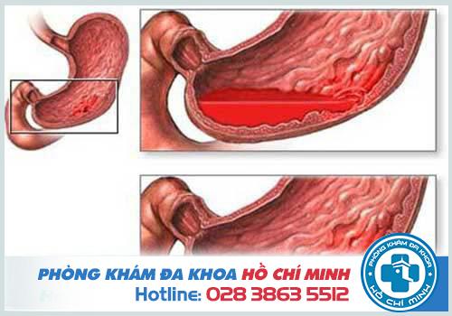 Đi ngoài ra máu và chất nhầy là dấu hiệu của bệnh gì?