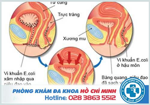 Đi tiểu buốt ra máu do nhiễm trùng đường tiểu