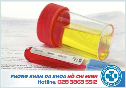 Đi tiểu ra máu nên uống thuốc gì tốt nhất?