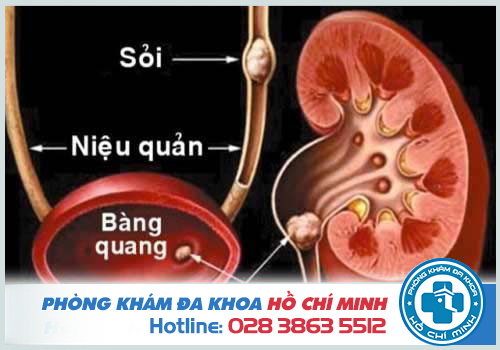 Nhiều nguyên nhân gây ra tiểu ra máu ở người bệnh