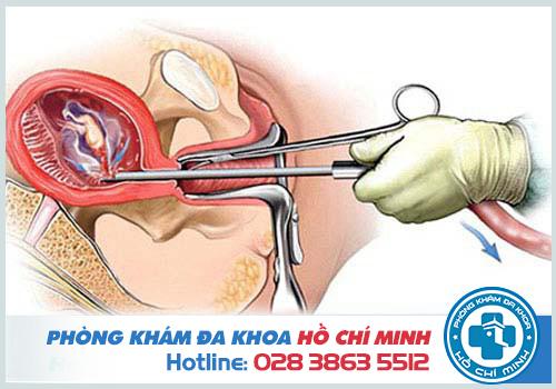 Bác sĩ có tay nghề yếu kém dễ dẫn đến rách thủng cổ tử cung khi nạo phá thai