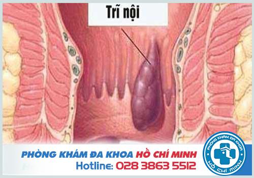 Địa chỉ chữa bệnh trĩ ở Đồng Nai