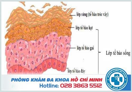 Hình ảnh mặt cắt cấu trúc da khi bị gai sinh dục