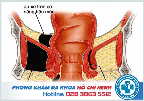 Hậu môn ẩm ướt có mùi hôi có thể là dấu hiệu của bệnh áp xe hậu môn