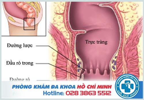Hậu môn chảy dịch vàng có mùi hôi là do bệnh lý rò hậu môn