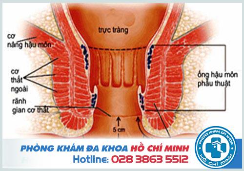 Triệu chứng rò hậu môn gây hiện tượng đau nhói ở hậu môn