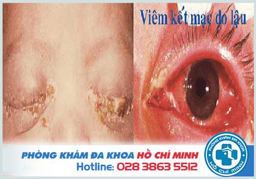 Hình ảnh bệnh lậu mắt trẻ sơ sinh