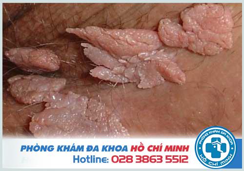 Hình ảnh về bệnh sùi mào gà ở nam giới và phụ nữ