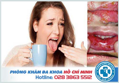Hình ảnh herpes miệng và cách điều trị herpes miệng