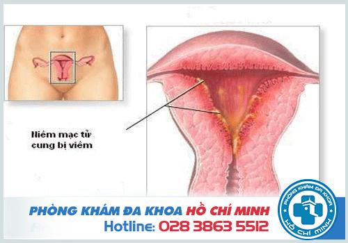 Viêm nội mạc cổ tử cung có nguy hiểm không