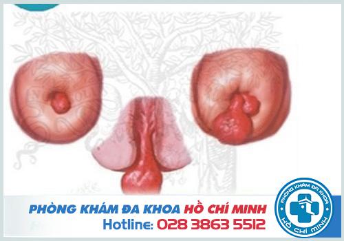 Hình ảnh polyp cổ tử cung ở chị em phụ nữ