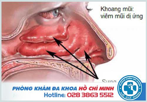 Polyp sưng to che hết phần hốc mũi và khó nhận biết mùi hương