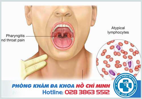 Virus EBV làm tăng nguy cơ mắc bệnh ung thư vòm họng