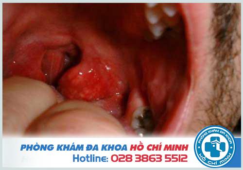 Hình ảnh ung thư vòm họng giai đoạn cuối