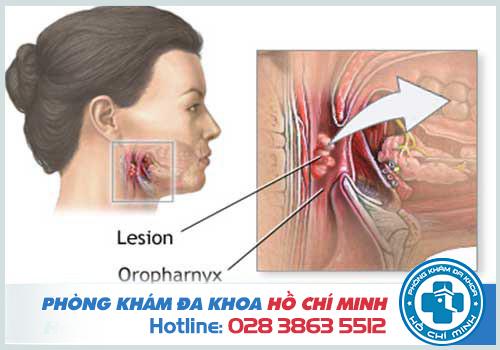 Hình ảnh ung thư vòm họng giai đoạn cuối khiến người bệnh mất tiếng