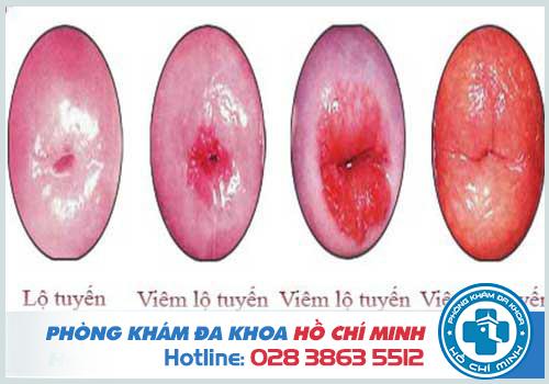 Viêm lộ tuyến cổ tử cung qua các cấp độ