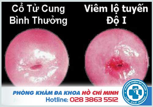 Hình ảnh viêm lộ tuyến cổ tử cung cấp độ 1