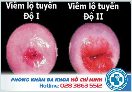 Vết bệnh rộng từ 0,5cm - 1cm, chiếm dưới 2/3 diện tích bề mặt cổ tử cung