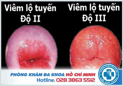 Vết bệnh rộng từ 3cm, chiếm trên 2/3 diện tích bề mặt cổ tử cung